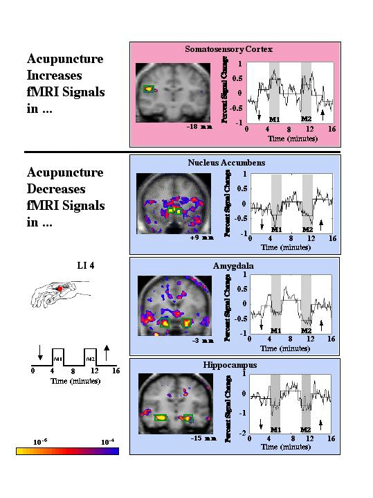 harvard fmri acu brain effect